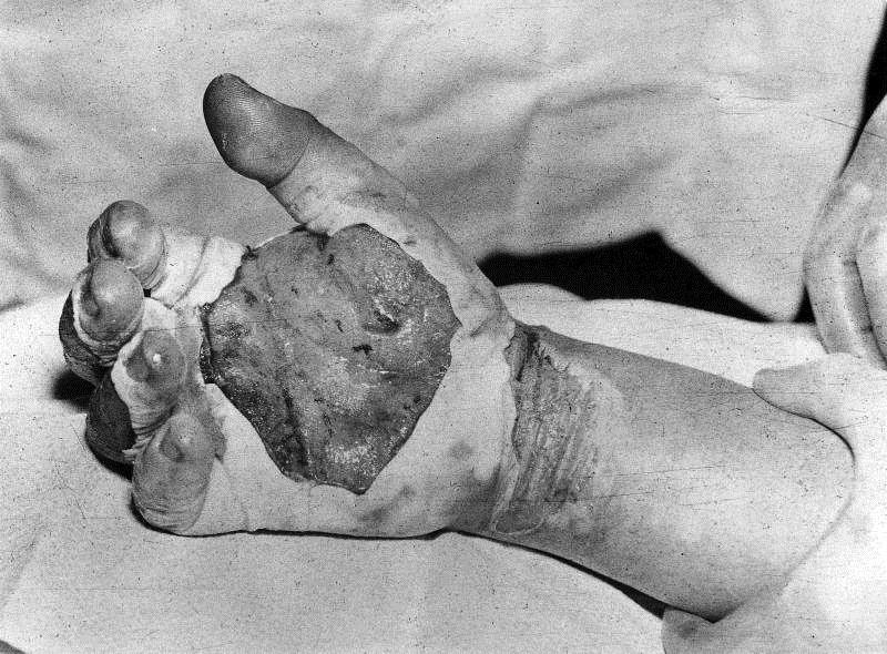 Рука Гарри Дагляна после того, как он получил смертельную дозу радиации